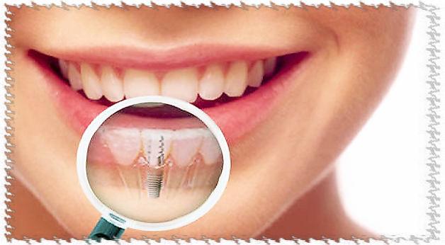 zubnye-implantanty
