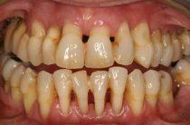 Здоровые зубы – красивая улыбка