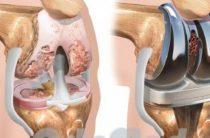 Лечение колена на высшем уровне