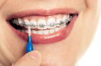 Брекеты на зубы клиентам