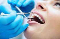 Пломбирование зубов. Мы не лечим зубы, мы улучшаем качество жизни