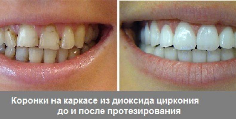 Улучшение зубов и улыбки