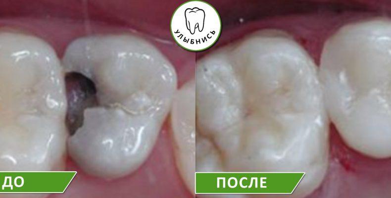 Лечение глубокого кариеса зубов в Екатеринбурге