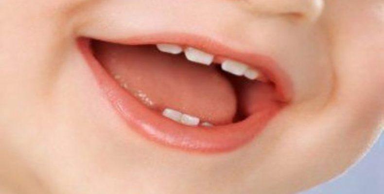 Лечение зубов у детей. Профилактика кариеса