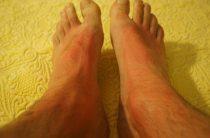 Осложнения при лечении варикозного расширения вен: покраснение кожи, развитие крапивницы